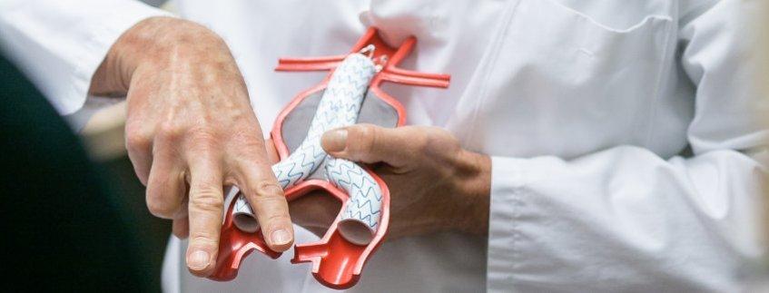Gefäß- und endovaskuläre Chirurgie